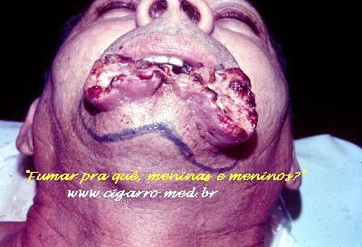 Como deixar de fumar e tornar-se forte ao homem